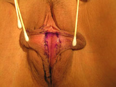 before Labiaplasty photo