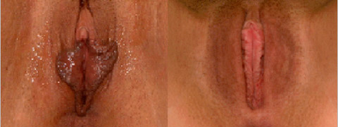 labiaplasty before after photos