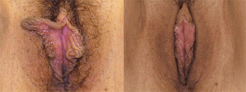 labiaplasty before and after photo